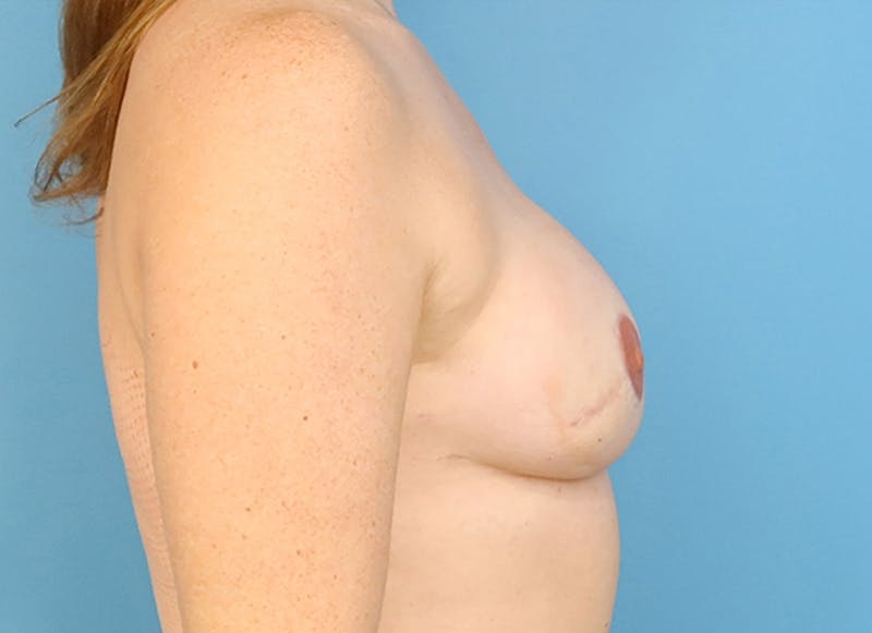 Breast Reconstruction - Flap Gallery - Patient 19339045 - Image 10