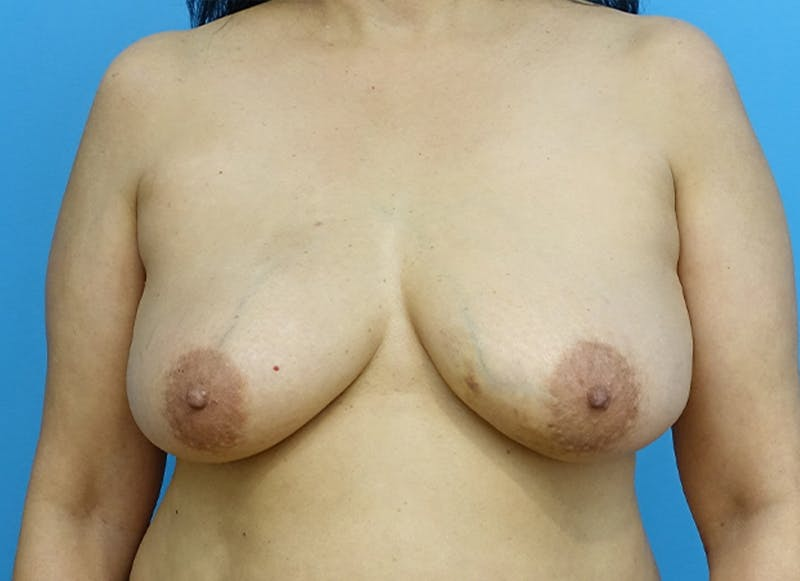 Breast Reconstruction - Flap Gallery - Patient 19339047 - Image 1