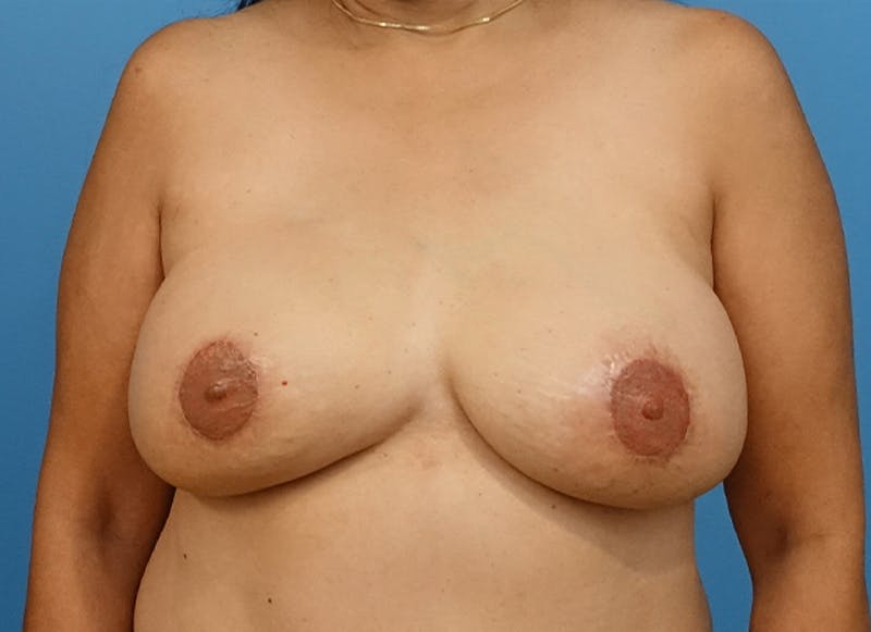 Breast Reconstruction - Flap Gallery - Patient 19339047 - Image 2