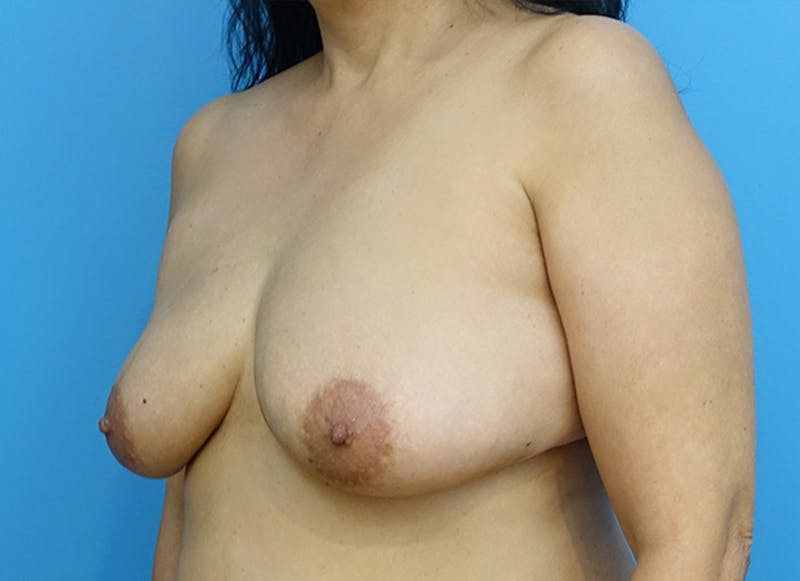 Breast Reconstruction - Flap Gallery - Patient 19339047 - Image 3