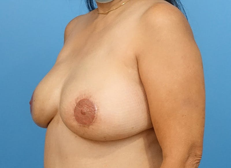 Breast Reconstruction - Flap Gallery - Patient 19339047 - Image 4