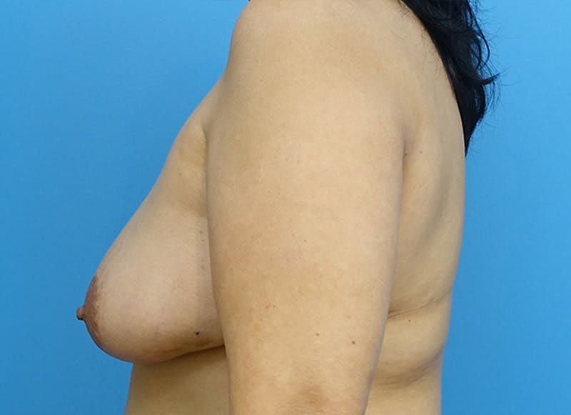 Breast Reconstruction - Flap Gallery - Patient 19339047 - Image 5