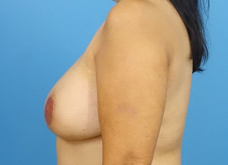 Breast Reconstruction - Flap Gallery - Patient 19339047 - Image 6