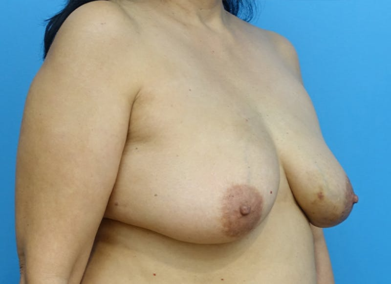 Breast Reconstruction - Flap Gallery - Patient 19339047 - Image 7