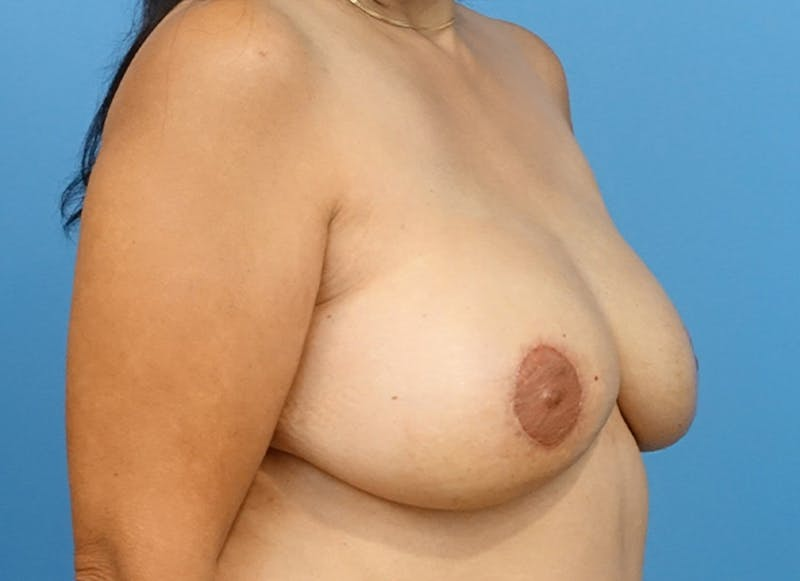 Breast Reconstruction - Flap Gallery - Patient 19339047 - Image 8