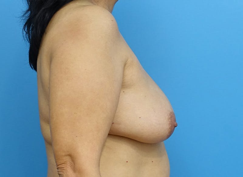Breast Reconstruction - Flap Gallery - Patient 19339047 - Image 9