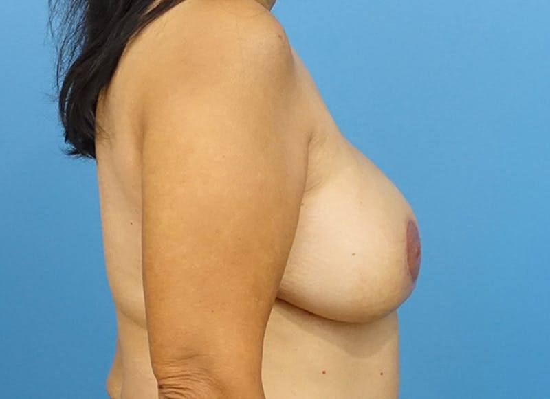 Breast Reconstruction - Flap Gallery - Patient 19339047 - Image 10