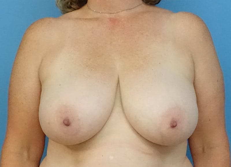 Breast Reconstruction - Flap Gallery - Patient 19339048 - Image 1