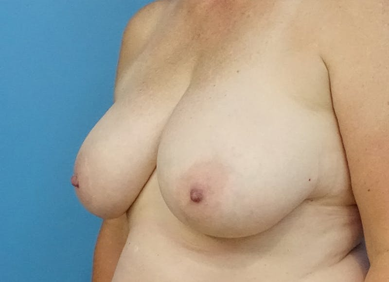 Breast Reconstruction - Flap Gallery - Patient 19339048 - Image 3