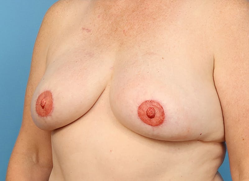 Breast Reconstruction - Flap Gallery - Patient 19339048 - Image 4