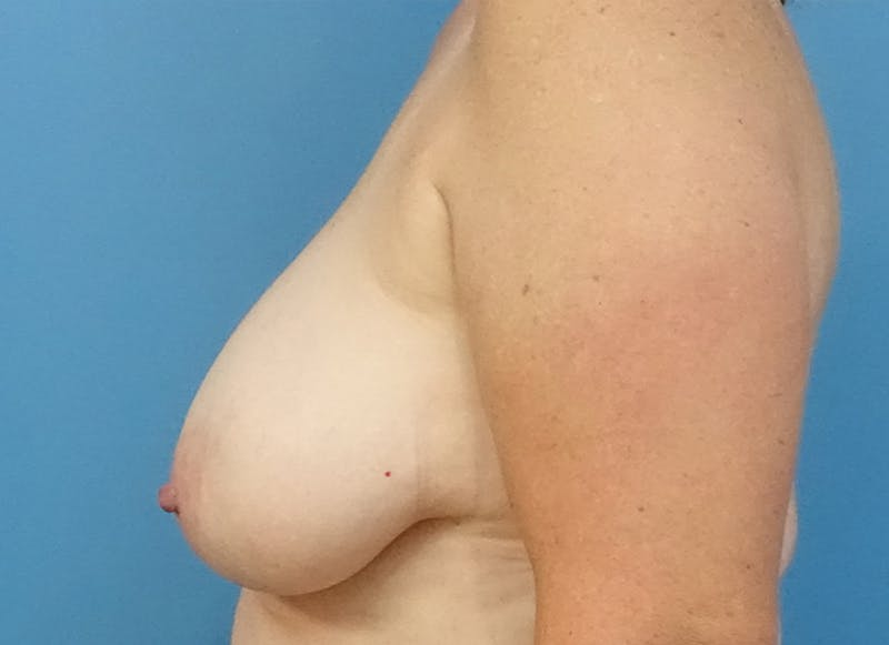 Breast Reconstruction - Flap Gallery - Patient 19339048 - Image 5
