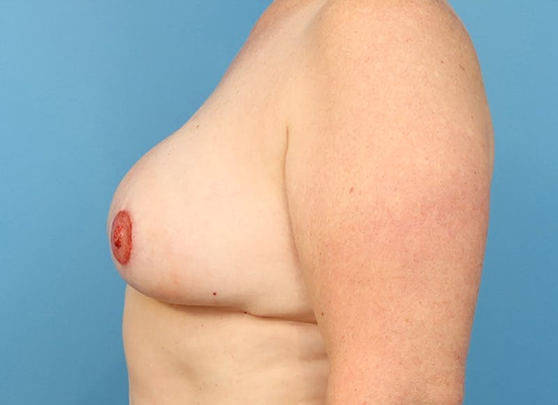 Breast Reconstruction - Flap Gallery - Patient 19339048 - Image 6