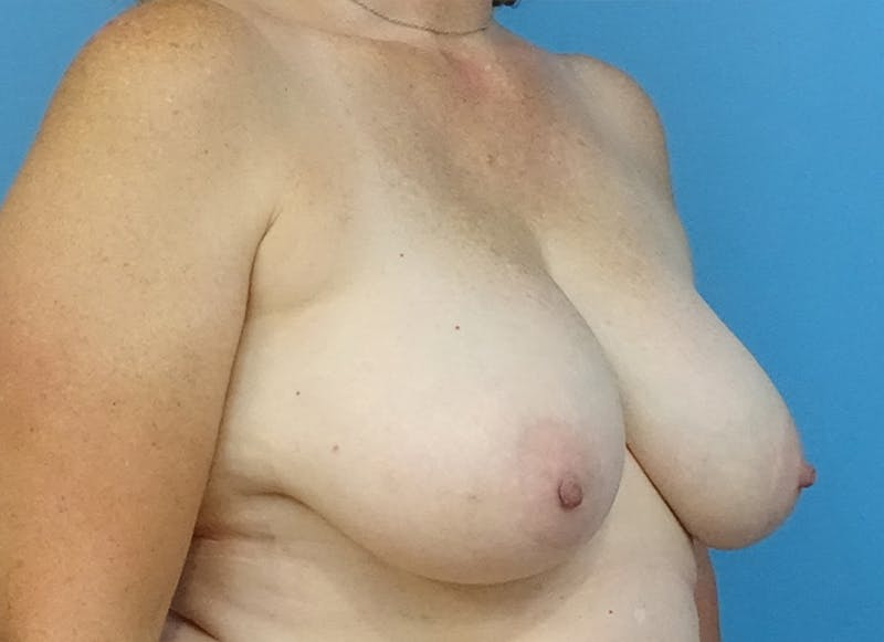 Breast Reconstruction - Flap Gallery - Patient 19339048 - Image 7