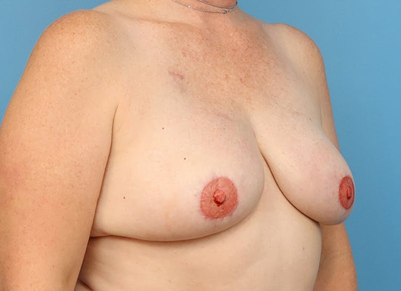 Breast Reconstruction - Flap Gallery - Patient 19339048 - Image 8