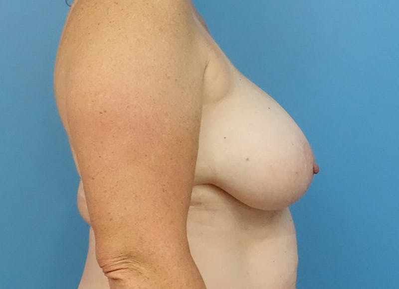Breast Reconstruction - Flap Gallery - Patient 19339048 - Image 9
