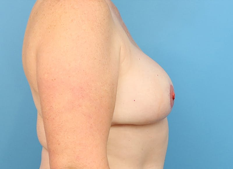 Breast Reconstruction - Flap Gallery - Patient 19339048 - Image 10
