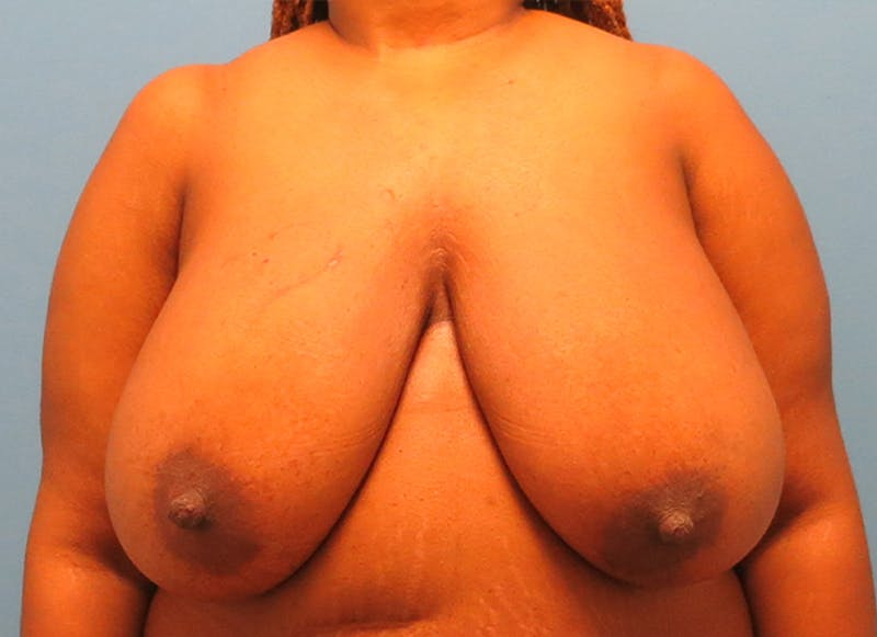 Breast Reconstruction - Flap Gallery - Patient 19339049 - Image 1