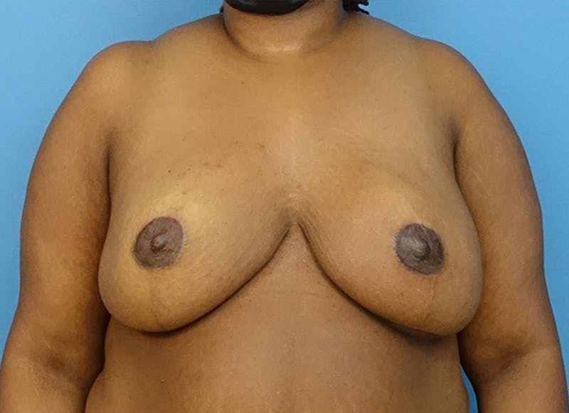 Breast Reconstruction - Flap Gallery - Patient 19339049 - Image 2