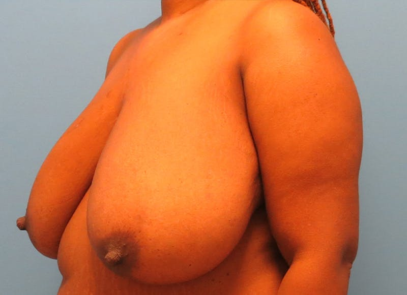 Breast Reconstruction - Flap Gallery - Patient 19339049 - Image 3