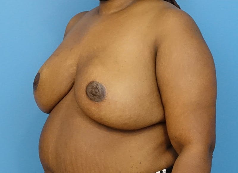 Breast Reconstruction - Flap Gallery - Patient 19339049 - Image 4
