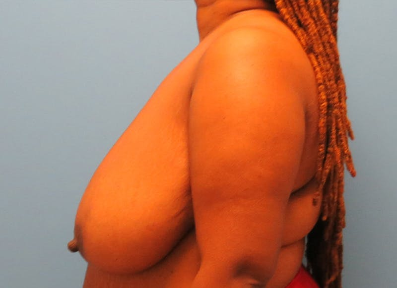 Breast Reconstruction - Flap Gallery - Patient 19339049 - Image 5