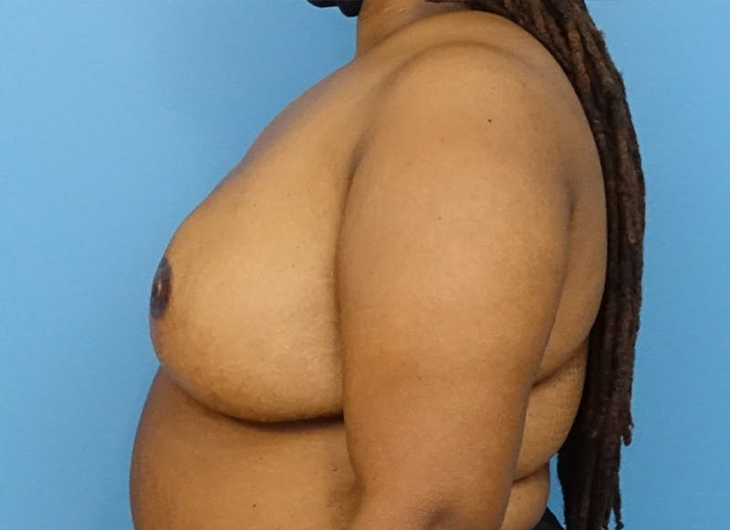Breast Reconstruction - Flap Gallery - Patient 19339049 - Image 6