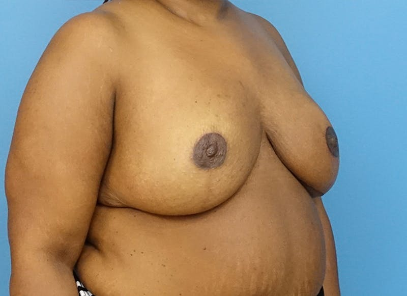Breast Reconstruction - Flap Gallery - Patient 19339049 - Image 8