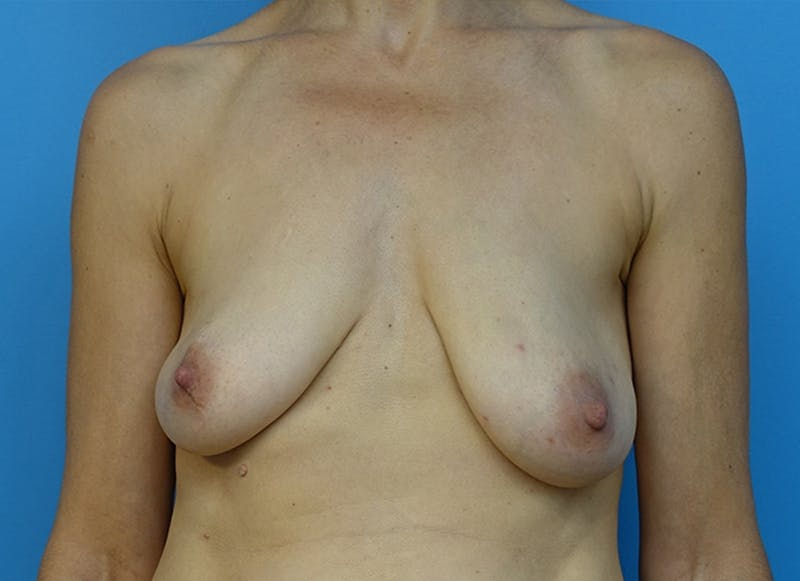 Breast Reconstruction - Flap Gallery - Patient 19339050 - Image 1