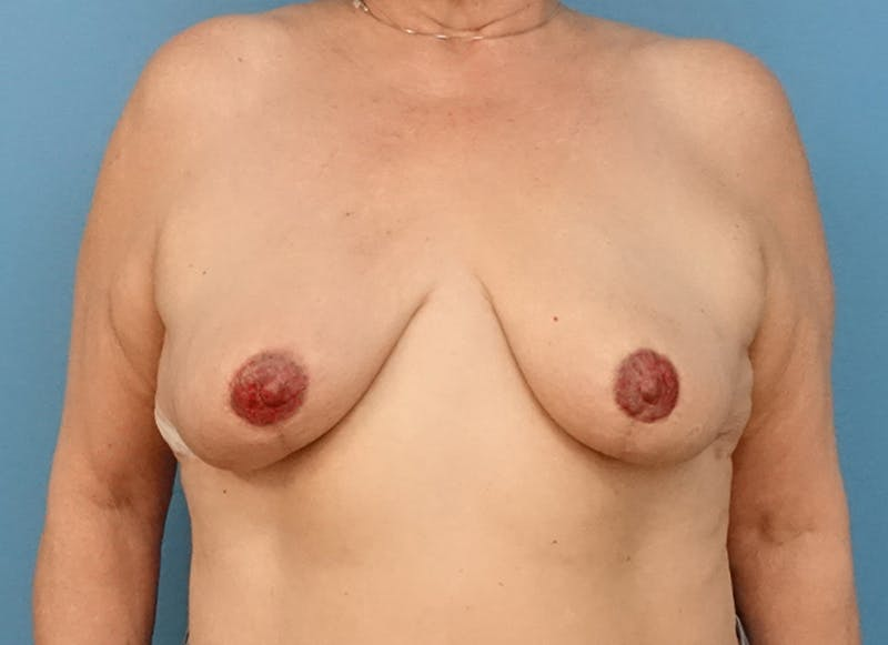 Breast Reconstruction - Flap Gallery - Patient 19339051 - Image 2