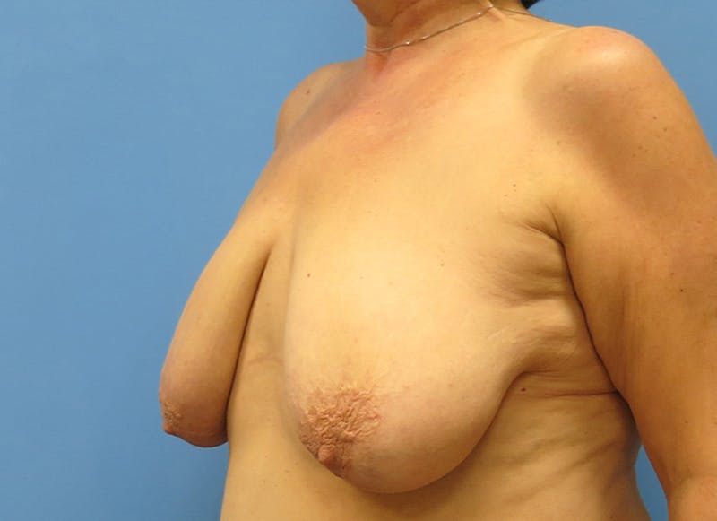 Breast Reconstruction - Flap Gallery - Patient 19339051 - Image 3