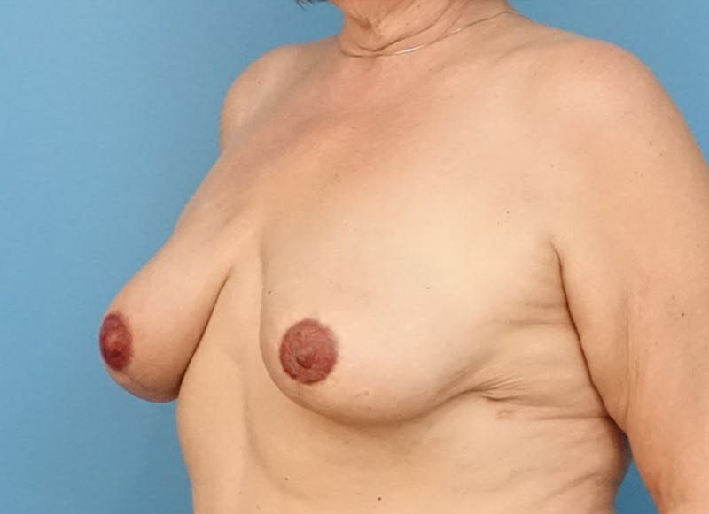 Breast Reconstruction - Flap Gallery - Patient 19339051 - Image 4