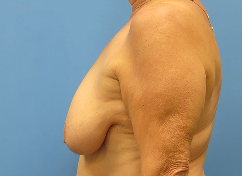 Breast Reconstruction - Flap Gallery - Patient 19339051 - Image 5