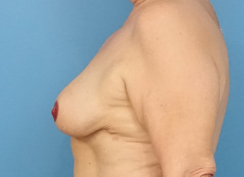 Breast Reconstruction - Flap Gallery - Patient 19339051 - Image 6
