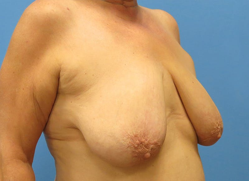 Breast Reconstruction - Flap Gallery - Patient 19339051 - Image 7