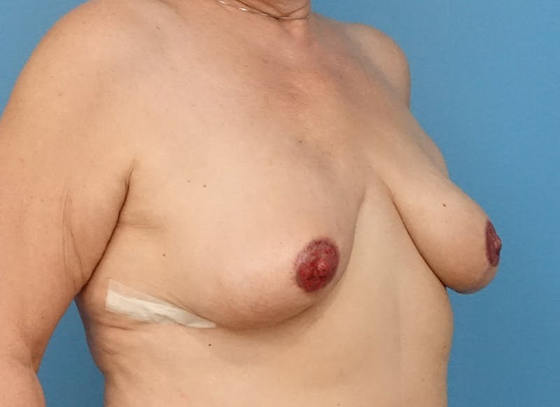 Breast Reconstruction - Flap Gallery - Patient 19339051 - Image 8