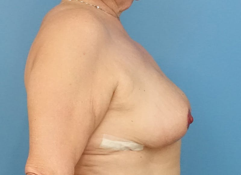 Breast Reconstruction - Flap Gallery - Patient 19339051 - Image 10