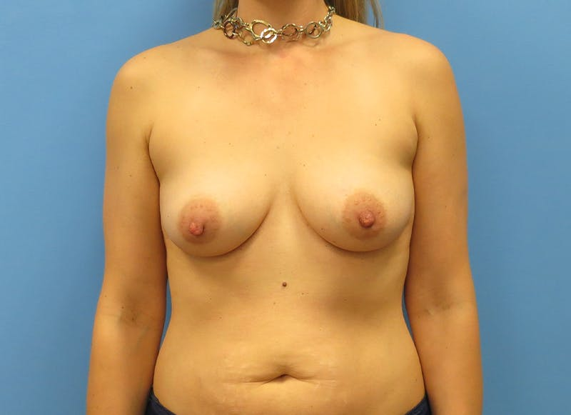 Breast Reconstruction - Implant Gallery - Patient 21366005 - Image 1