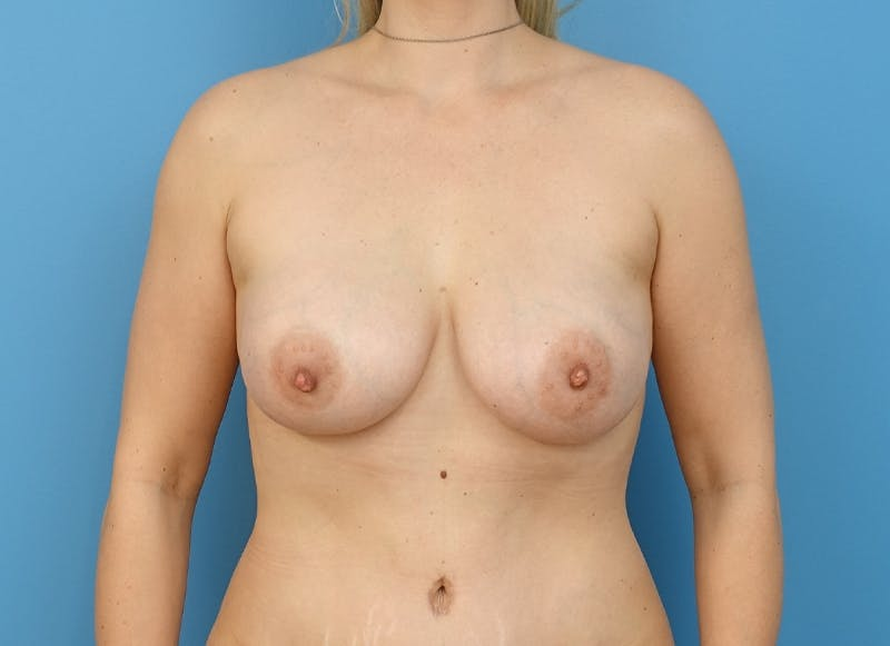 Breast Reconstruction - Implant Gallery - Patient 21366005 - Image 2