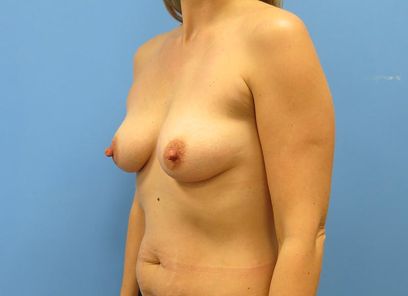 Breast Reconstruction - Implant Gallery - Patient 21366005 - Image 3
