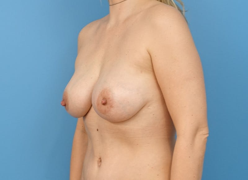 Breast Reconstruction - Implant Gallery - Patient 21366005 - Image 4