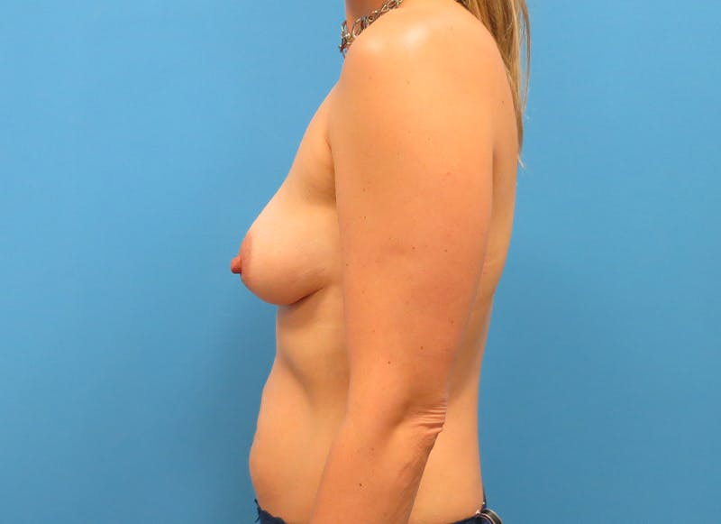 Breast Reconstruction - Implant Gallery - Patient 21366005 - Image 5