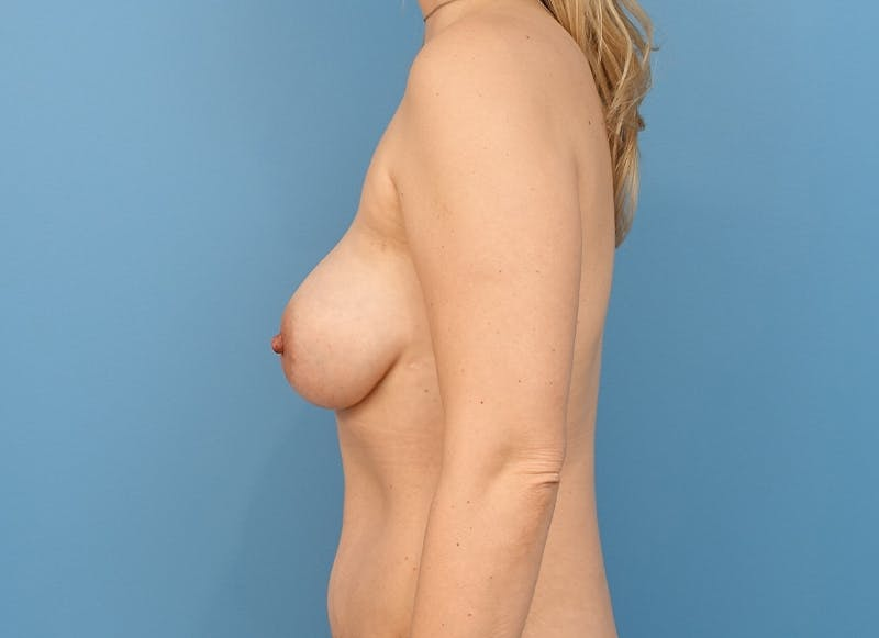 Breast Reconstruction - Implant Gallery - Patient 21366005 - Image 6