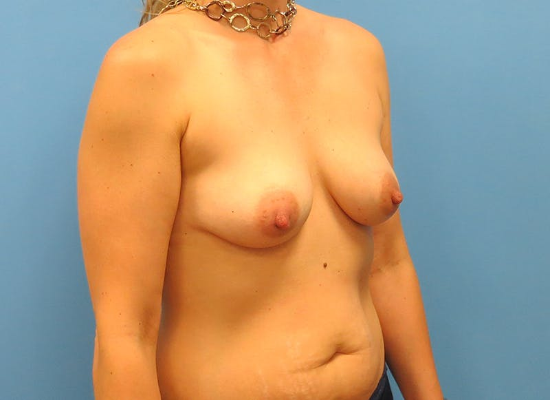 Breast Reconstruction - Implant Gallery - Patient 21366005 - Image 7