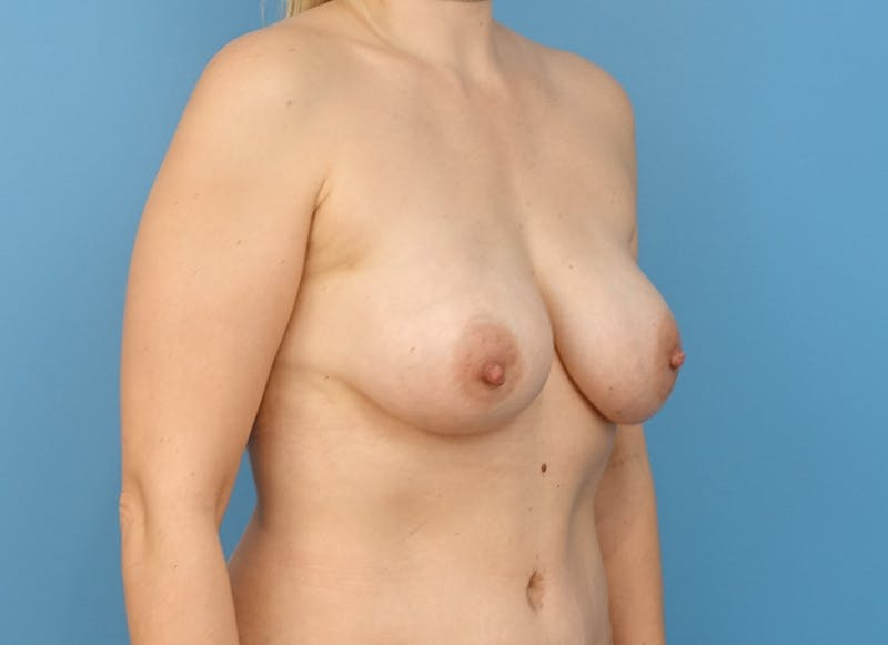 Breast Reconstruction - Implant Gallery - Patient 21366005 - Image 8