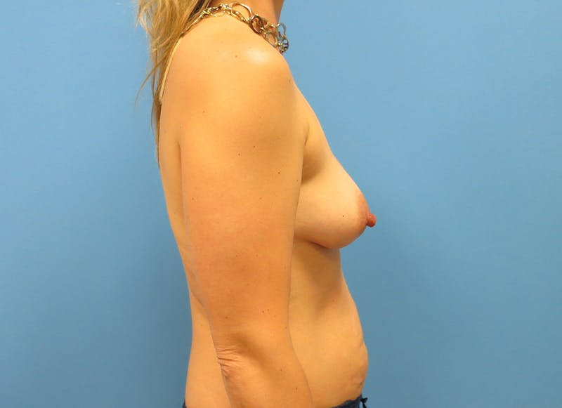 Breast Reconstruction - Implant Gallery - Patient 21366005 - Image 9