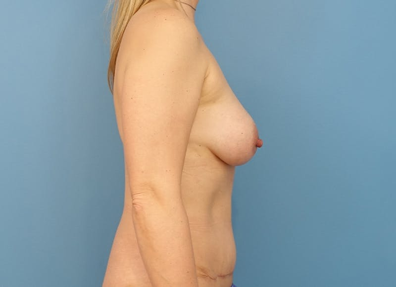 Breast Reconstruction - Implant Gallery - Patient 21366005 - Image 10