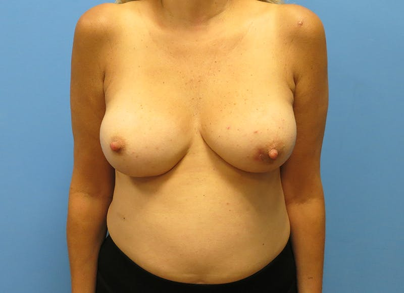 Breast Reconstruction - Implant Gallery - Patient 21366006 - Image 1