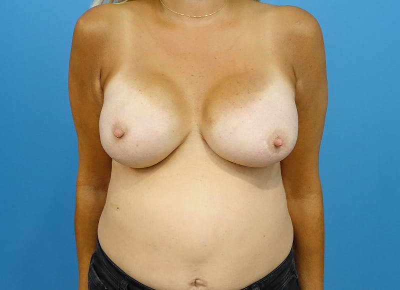 Breast Reconstruction - Implant Gallery - Patient 21366006 - Image 2