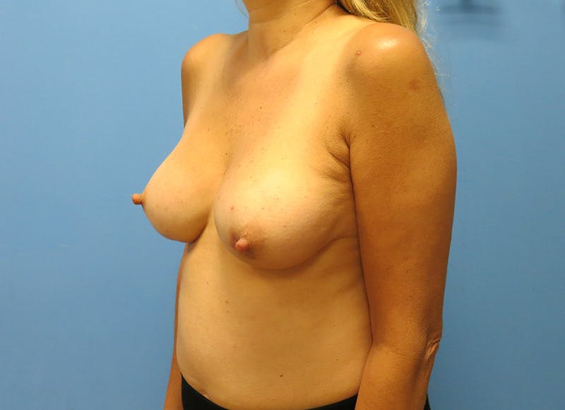Breast Reconstruction - Implant Gallery - Patient 21366006 - Image 3