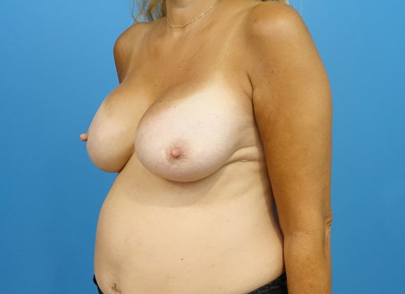 Breast Reconstruction - Implant Gallery - Patient 21366006 - Image 4